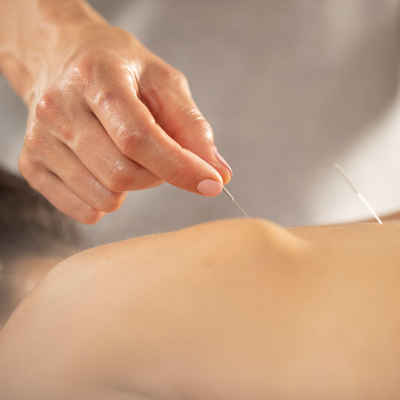 Affinity Treatment dry needling